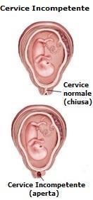 Fibrosi cistica e incontinenza urinaria