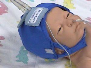 Neonato con caschetto termico per il trattamento dell'encefalopatia ipossico ischemica