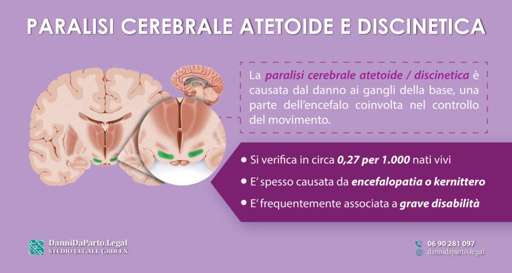 Paralisi-cerebrale-atetoide-discinetica
